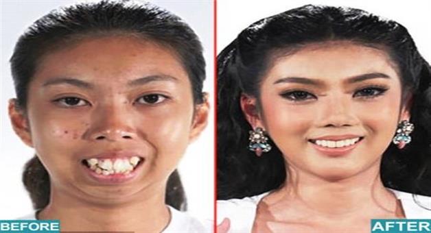 Khabar Odisha:thai-girl-transformation-after-plastic-surgery