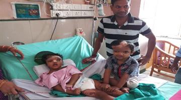 Khabar Odisha:Delhi-Aims-remove-bandage-from-twins-jaga-kalia