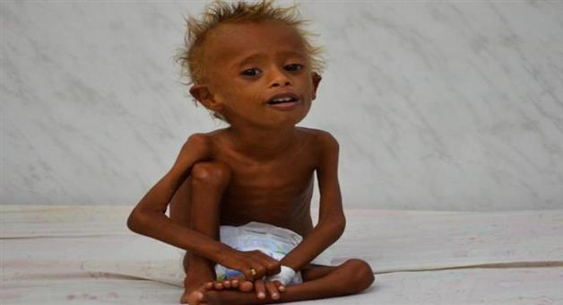 Khabar Odisha:UN-warns-of-perfect-storm-of-hunger-climate-change-and-man-made-conflicts