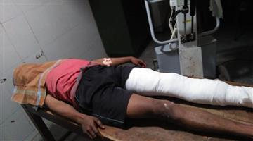 Khabar Odisha:crime-odisha-dreaded-criminal-Manoj-injured-in-ctc-police-encounter
