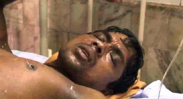 Khabar Odisha:customer-throws-hot-oil-on-shopkeeper