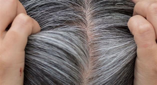 Khabar Odisha:know-how-to-care-white-hair