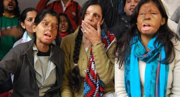 Khabar Odisha:national-odisha-uttarakhand-government-will-give-pension-to-acid-victim